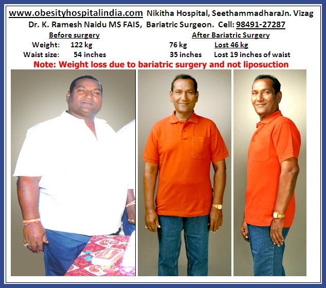 Nikitha Hospital For Obesity Weight Loss Vaser Lipo Laparoscopy