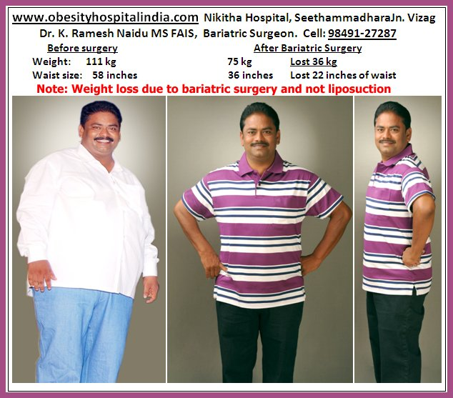 Nikitha Hospital For Obesity Weight Loss Vaser Lipo Laparoscopy